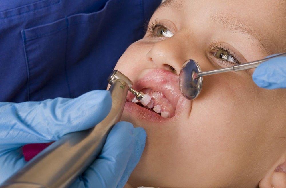 çocuk diş hekimi türkiye