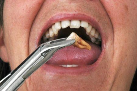 diş çekimi korkusu
