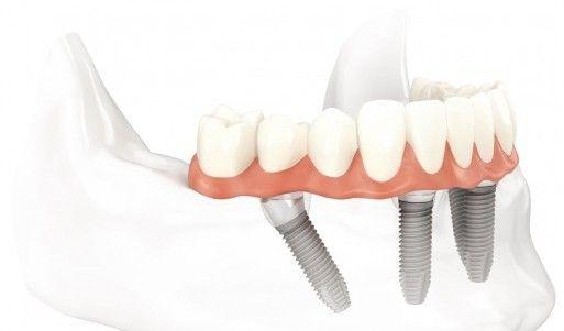 implant nedir